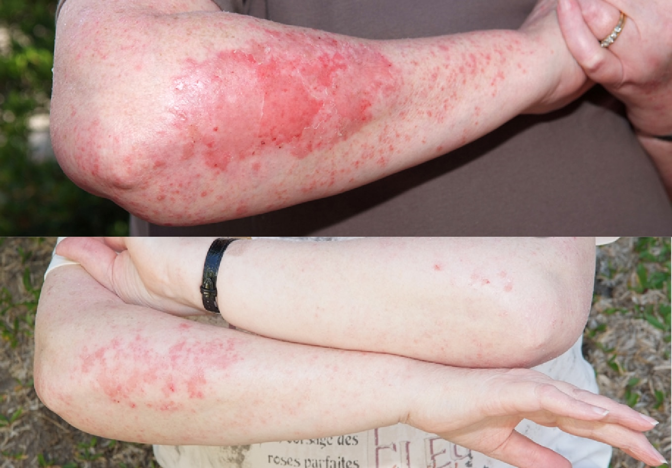 Psoriasis healed with Elektra Magnesium Cream